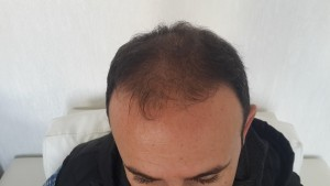 dhi hair transplant turkey best hair transplant clinic turkey. Black Bedroom Furniture Sets. Home Design Ideas